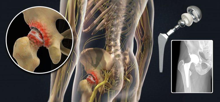 Инъекции при коксартрозе тазобедренного сустава